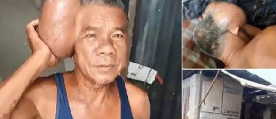 Pewien Tajlandczyk cierpi z powodu guza tak bardzo, że jak sam mówi, chciałby już umrzeć. Guz urósł mu do takiego rozmiaru, że wygląda to tak, jakby mężczyzna miał dwie głowy. Nie może spać i ma straszne bóle. 71-letni Jaroon Suanmali zaprzestał leczenia już lata temu, gdy skończyły mu się pieniądze.