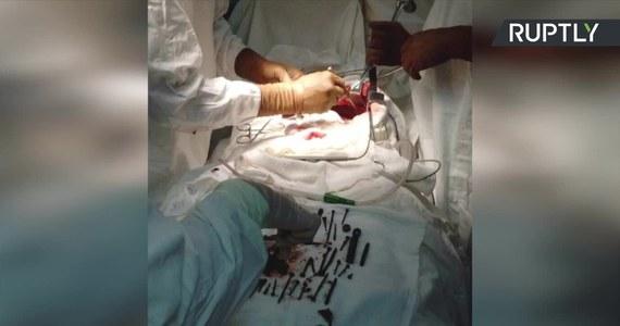 Niemałe zaskoczenie czekało lekarzy w szpitalu w Ułan-Ude na Syberii, gdy z bólem brzucha trafiła do nich 74-letnia kobieta. Okazało się, że w jej żołądku znajdują się metalowe przedmioty. Konieczna była operacja, w trakcie której z żołądka pacjentki wydobyto 152 śruby, gwoździe i wkręty oraz srebrny łańcuszek - wszystko ważyło łącznie ponad kilogram. Pacjentka nie potrafiła wyjaśnić lekarzom, dlaczego połykała metalowe przedmioty.