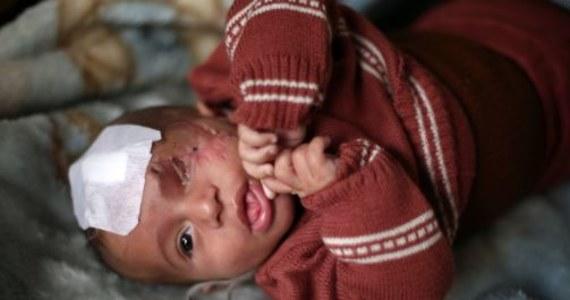 Karim Abdallah stracił oko, gdy miał niecałe dwa miesiące. Niemowlę wraz matką znaleźli się pod ostrzałem wojsk rządu syryjskiego we Wschodniej Ghucie. Dziś w połowie oślepione syryjskie dziecko stało się symbolem umęczonej enklawy.
