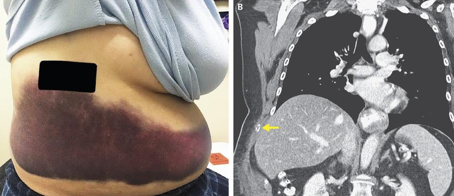 66-letnia mieszkanka Massachusetts w USA zgłosiła się do lekarza z kaszlem i bólem prawego boku. Choć początkowo przypuszczano, że choruje na grypę, kolejne badania to wykluczyły. Okazało się, że prawdziwa przyczyna kaszlu doprowadziła również do... złamania żebra.