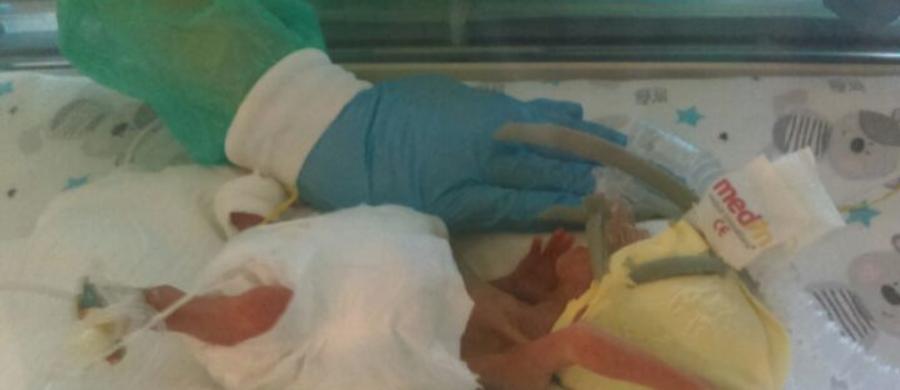 Urodzony w 25. tygodniu ciąży Szymek jest najmniejszym do tej pory wcześniakiem urodzonym w szpitalu klinicznym nr 2 na Pomorzanach. Jest też najmniejszym wcześniakiem w całym Szczecinie. Chłopiec miał zaledwie 30 cm długości i ważył 400 gramów. Dziś waży już ponad 2,5 kg i jeszcze w tym tygodniu będzie mógł wrócić z mamą do domu.