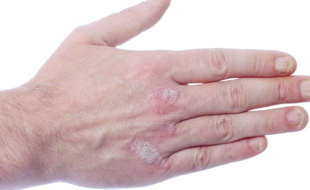 Wiele osób jest przekonanych, że łuszczyca jest chorobą, którą możemy się zarazić, m.in. przez podanie ręki. Chorzy czują się często napiętnowani i odrzuceni. Profesor Radosław Śpiewak, dermatolog i alergolog z Uniwersytetu Jagiellońskiego, wyjaśnia, że jest to choroba uwarunkowana genetycznie. To oznacza, że można bez obawy na przykład przytulać osoby zmagające się z tą chorobą.
