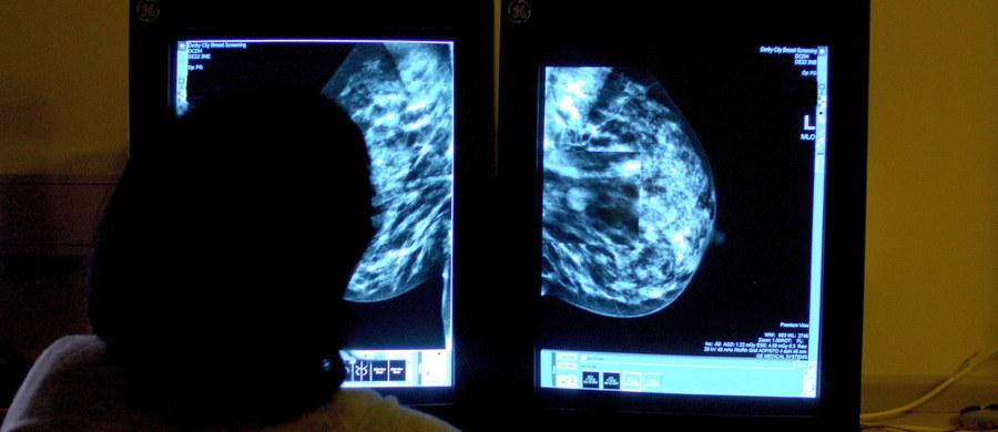 Za siedem lat nowotwory staną się główną przyczyna zgonów w Polsce, a zachorowalność wzrośnie o jedną czwartą - alarmuje Najwyższa Izba Kontroli w specjalnym raporcie przygotowanym z okazji Światowego Dnia Walki z Rakiem.