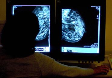 NIK: W 2025 roku nowotwory staną się główną przyczyną zgonów