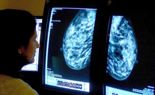 """Nowotwory to coraz poważniejszy problem. U 150 tysięcy Polaków każdego roku diagnozowany jest rak. O nowotworze piersi co roku dowiaduje się 17 tysięcy kobiet w Polsce. """"Jeszcze kilka dekad temu, rak piersi oznaczał mastektomię – usunięciem całego gruczołu, całej piersi i okaleczanie ściany klatki piersiowej u kobiety, jej kobiecości. Natomiast teraz oferujemy zabiegi oszczędzające, czyli minimalnie inwazyjne zabiegi, usunięcie fragmentu piersi. Teraz oferujemy (...) jednoczasową rekonstrukcję wyniosłości piersiowej, żeby kobieta mogła się cieszyć swoim dekoltem."""" - mówi prof. Agnieszka Kołacińska, profesor nadzwyczajny z Uniwersytetu Medycznego w Łodzi, specjalista chirurg z Centrum Onkologii w Łodzi."""