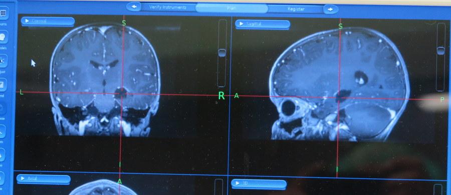 W szpitalu w kenijskim Nairobi chirurdzy przez pomyłkę przeprowadzili operację mózgu na niewłaściwym pacjencie - informuje BBC. Cały zespół został zawieszony do wyjaśnienia sprawy.