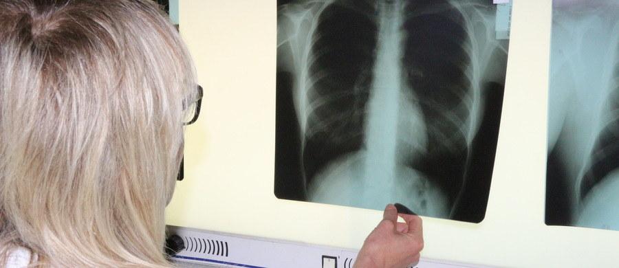 Rak płuca jest najczęściej występującym w naszym kraju nowotworem. Według Narodowego Funduszu Zdrowia, od 1 października tego roku, w pilotażowych ośrodkach możliwe jest wprowadzenie kompleksowej opieki w zakresie tej choroby. Powinno to poprawić wczesną diagnostykę oraz skuteczność leczenia tego nowotworu.