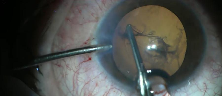 W ciągu kilku godzin 22-latek straciłby wzrok w lewym oku, gdyby nie okuliści z lubelskiego szpitala klinicznego nr 1. Przeprowadzili skomplikowany zabieg, żeby uratować przebite metalowym przedmiotem rogówkę i soczewkę. A wszystko z powodu braku okularów ochronnych.