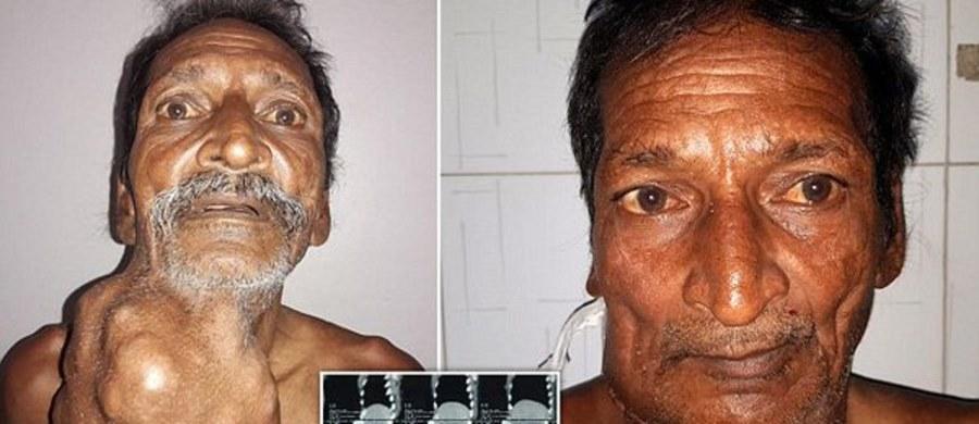 55-letni farmer z Indii przeszedł operację usunięcia z szyi guza o wadze 1,4 kilogramów. Przez 20 lat mężczyzna ignorował powiększającą się grudkę.