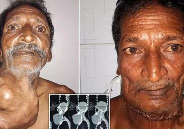 Indyjski rolnik po usunięciu 1,4-kilogramowego guza. Rósł przez 20 lat!