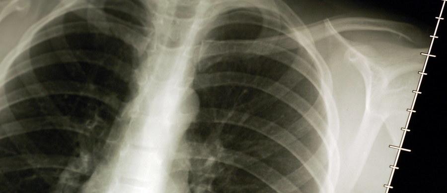 """""""Szpitale mają problem z sfinansowaniem nowego leczenia pacjentów"""" - alarmuje w liście do Ministerstwa Zdrowia Stowarzyszenie Walki z Rakiem Płuca. Pacjenci zwracają uwagę, że - mimo iż od lipca refundowana jest nowoczesna immunoterapia - nie zwiększyła się liczba kontraktów z Narodowym Funduszem Zdrowia. Efekt jest taki, że niektóre ośrodki będą zmuszone odmówić pacjentom tego leczenia."""