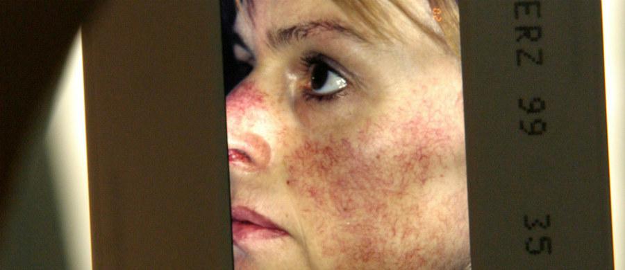 Trądzik różowaty jest zapalną chorobą skóry występującą zarówno u kobiet, jak i u mężczyzn. Jest to przewlekłe schorzenie, co oznacza, że nie da się go wyeliminować w 100 procentach. Dermatolog dr Kamila Białek-Galas opisuje metody leczenia tej choroby i radzi jak pielęgnować skórę z takim trądzikiem.