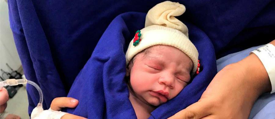 W Brazylii urodziło się pierwsze dziecko po przeszczepie macicy od zmarłej dawczyni. To przełomowe wydarzenie może dać nadzieję 1 na 500 kobiet, które cierpią na niepłodność z powodu anomalii związanych z macicą.