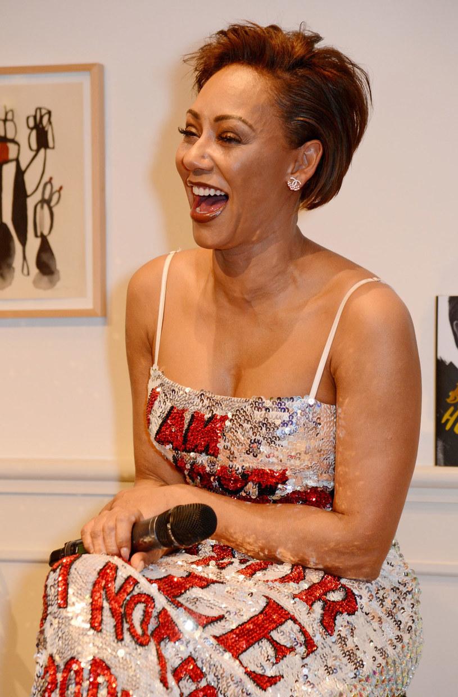 Prawdopodobnie aż do świąt Bożego Narodzenia w szpitalu pozostanie Mel B, która trafiła tam po upadku ze schodów. Wokalistka Spice Girls pokazała swoje zdjęcia na Instagramie.