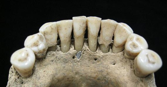 Nie tylko mnisi, ale także zakonnice pracowały 900 lat temu przy pisaniu manuskryptów, używając przy tym bardzo cennej ultramaryny. Naukowcy z Jeny doszli do tego po analizie szczątków kobiet pochowanych na cmentarzy średniowiecznego klasztoru w Dalheim, a konkretnie jej… zębów.