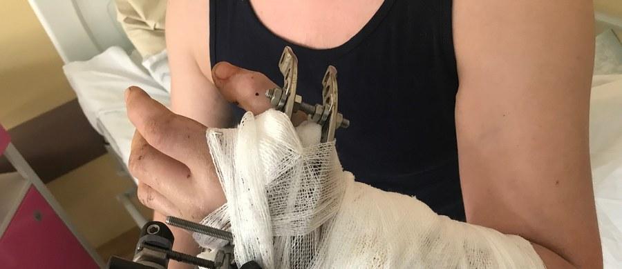 Dłoń była do amputacji, ale lekarzom z Łęcznej na Lubelszczyźnie udało się ją przyszyć. Po dwóch tygodniach pacjent wychodzi do domu. 24-letniemu Arkadiuszowi Lipcowi na rękę spadła ważąca pół tony metalowa rama, która kompletnie ją zmiażdżyła.