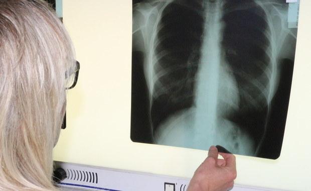 """""""Zdarza się, że osoby przyzwyczajają się do braku tchu. Myślą, że to tak musi być, że nie oddychają pełną piersią, że męczą się, żeby wyjść do mieszkania na trzecie czy czwarte piętro. A to może być niezdiagnozowana astma oskrzelowa"""" – mówi prof. Ewa Czarnobilska z Polskiego Towarzystwa Alergologicznego. Zdrowym oddychaniem zajmujemy się w tym tygodniu w cyklu """"Twoje Zdrowie w Faktach RMF FM""""."""
