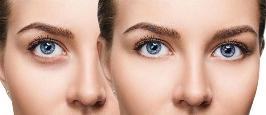 """Skóra wokół oczu jest bardzo delikatna. Cienie pod oczami, zwane również sińcami, są jednym z jej najczęstszych problemów. Również u osób prowadzących zdrowy tryb życia mogą pojawić się praktycznie w każdym wieku. Czemu powstają? Jak można im zapobiegać, a jak pozbywać się ich, jeśli już występują? Opowiada o tym ekspertka portalu """"Twoje Zdrowie"""" kosmetolog Karolina Martin."""