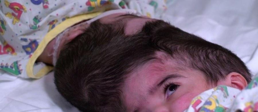 Sukcesem zakończyła się trwająca ponad 50 godzin operacja rozdzielenia bliźniaczek syjamskich w londyńskim szpitalu. Dwuletnie siostry pochodzące z Pakistanu urodziły się połączone czaszkami i układem krwionośnym. Była to kolejna tego typu operacja przeprowadzona w londyńskim szpitalu Great Ormond Street.