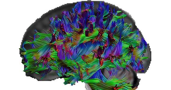 """Większość z nas zna kogoś, kto wszystko wie i zdaje się mieć odpowiedź na niemal każde pytanie. Jak przekonują naukowcy z Ruhr-Universität Bochum i Humboldt-Universität w Berlinie, większa wiedza wiąże się z lepszą organizacją mózgu. Na łamach czasopisma """"European Journal of Personality"""" opisują wyniki badań, które to potwierdzają. Przeprowadzono je na grupie 324 osób, które poddano zarówno badaniom obrazowym z pomocą rezonansu magnetycznego, jak i testom z wiedzy ogólnej."""