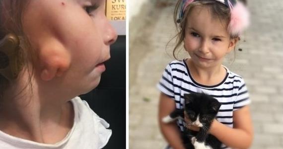 Puszkę pełna datków na leczenie 5-letniej Mai skradziono ze sklepu przy ul. Lipowej na szczecińskim Gocławiu. Sprawcy szuka teraz policja. Rodzice chorego dziecka apelują o zwrot pieniędzy. Próbują uzbierać 300 tysięcy złotych na operację zniekształconej przez chorobę twarzy 5-latki.