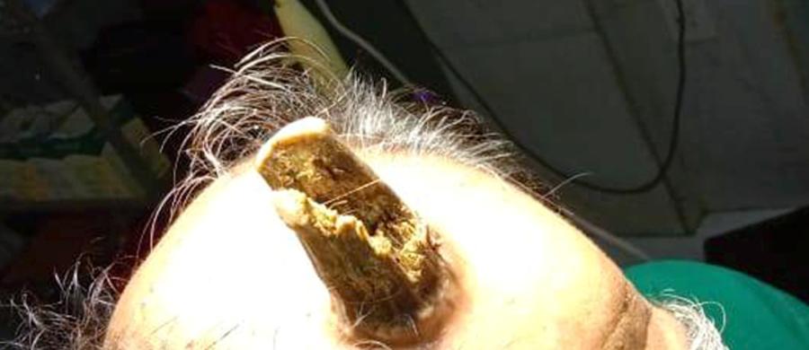 74-letni Hindus przez kilka lat obserwował jak na jego głowie rośnie róg. Pojawił się po urazie głowy, którego mężczyzna doznał w 2014 roku. Chirurdzy z Indii z powodzeniem usunęli bardzo rzadko występujący róg podskórny.