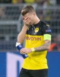 Bundesliga. Borussia zataiła poważny uraz Reusa