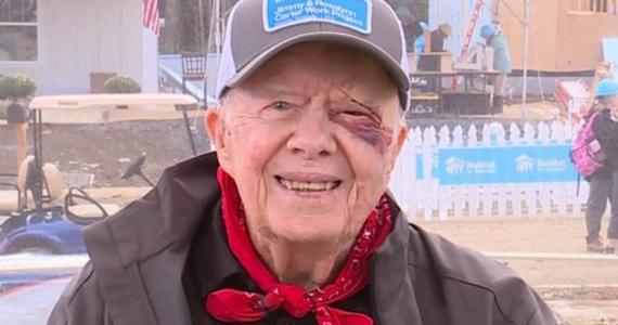 95-letni były prezydent USA Jimmy Carter przebywa w szpitalu. Powodem jest złamanie miednicy. Według rzeczniczki Carter Center Deanne Congileo prezydent upadł w swoim domu w Plains w stanie Georgia.