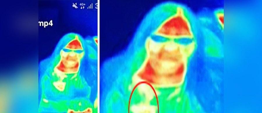 """Zdjęcie termograficzne wykonane w muzeum """"Camera Obscura and World of Illusions"""" w Edynburgu pozwoliło wcześnie wykryć raka piersi u 41-letniej kobiety – informuje brytyjska prasa."""