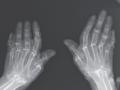 Teleskopowe palce - rzadkie schorzenie dotykające kości