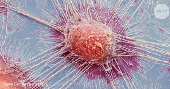 """Rosną szanse na skuteczniejszą diagnostykę i terapię nowotworów. W tym tygodniu ogłoszono wyniki największych w historii badań genomów komórek nowotworowych. Tygodnik """"Nature"""" i inne czasopisma opublikowały w sumie 22 artykuły na ten temat, dzieło 1300 naukowców z 37 krajów, którzy brali udział w projekcie Pan-Cancer. Przeanalizowali oni 2600 genomów komórek aż 38 typów nowotworów. Wskazali na mutacje DNA, które prowadzą do pojawienia się choroby, pozwalają też ocenić, jaka była ich bezpośrednia przyczyna, choćby wystawianie się na promieniowanie UV, czy palenie papierosów. Dzięki tej pracy łatwiej będzie teraz analizować przyczyny nowotworów, diagnozować je i leczyć. Łatwiejsza powinna być profilaktyka, łatwiejsze ustalenie, dlaczego ten sam rodzaj raka u jednych pacjentów da się w dany sposób leczyć, a u innych nie. Onkologia zyskała potężne źródło informacji, które teraz musi wykorzystać."""