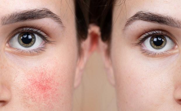 Skóra to największy narząd naszego ciała chroniący je przed wpływem środowiska. Z tego względu jest narażona na działanie zimna, promieniowania czy też drobnoustrojów chorobotwórczych. Szczególnie podczas chłodniejszych miesięcy możemy zauważyć, jak czynniki zewnętrzne wpływają na stan naszej cery. Objawia się to między innymi w formie zaczerwienienia, a czasem nawet zasinienia skóry na twarzy czy dłoniach podczas przejścia z zimniejszego do cieplejszego pomieszczenia. O tym, skąd bierze się rumień i jak możemy mu zapobiegać opowiada kosmetolog Karolina Martin.