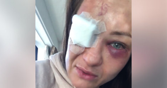 """Wyjątkowo niefortunnie zakończył się dla Karoliny Kowalkiewicz występ na gali UFC w Auckland. Polka nie tylko przegrała walkę z Chinką Xiaonan Yan, ale nabawiła się również poważnego urazu oka. """"Przez całą walkę praktycznie nic nie widziałam, widziałam podwójnie, wszystko było jak we mgle"""" - relacjonuje zawodniczka w nagraniu wideo opublikowanym w mediach społecznościowych. Konieczna będzie operacja."""