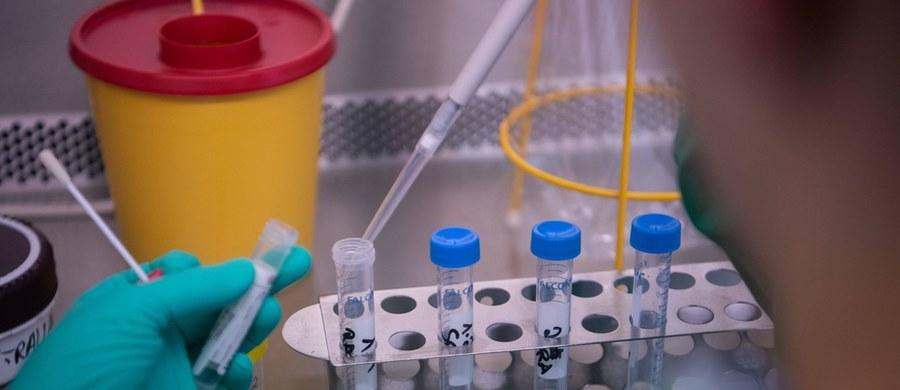 Lubelska firma BioMaxima S.A. zgłosiła do Urzędu Rejestracji Produktów Leczniczych, Wyrobów Medycznych i Produktów Biobójczych testy przesiewowe umożliwiające typowanie osób, u których mogło dojść do zakażenia koronawirusem  lubelska firma. Wynik testu można odczytać po upływie 10 minut.
