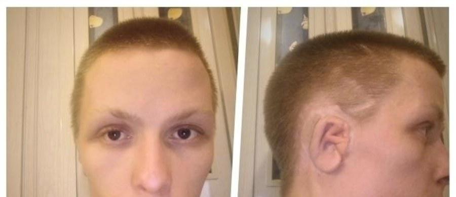 """23-letni Kamil apeluje pomoc. Zbiera pieniądze na kosztowną operację rekonstrukcji ucha, która niestety nie jest refundowana. """"Od urodzenia nie miałem łatwo, choć radzę sobie, jak mogę. Przeszedłem łącznie 8 operacji i wiele cierpienia - to wszystko na nic. Rany na duszy pewnie nie zagoją się nigdy … """" – pisze na stronie zbiórki."""