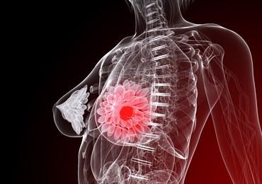 Zespół naukowców z SGGW w walce z agresywnym rakiem piersi