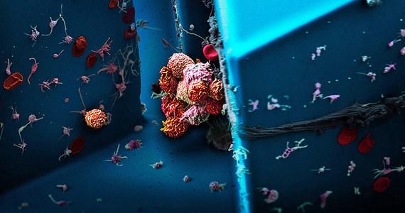 """Zaskakujące odkrycie naukowców z Uniwersytetu w Bazylei. Ich badania pokazały, że przerzuty nowotworowe tworzą się częściej, jeśli oryginalny, pierwotny guz ma zaburzony dostęp do tlenu. To może mieć znaczenie dla leczenia onkologicznego przynajmniej niektórych typów raka, na przykład najgroźniejszych nowotworów piersi. Pisze o tym w najnowszym numerze czasopismo """"Cell Reports""""."""