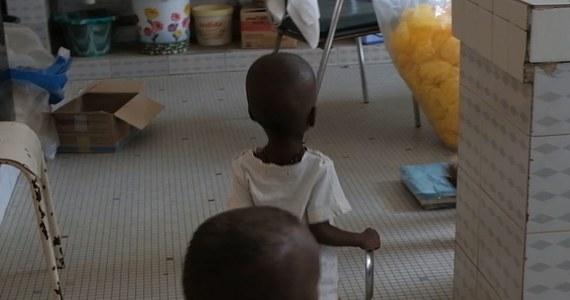 W Senegalu problem niedożywienia dotyczy aż 2,5 miliona osób – alarmuje Polska Misja Medyczna. Jednym z najpoważniejszych skutków niedożywienia jest anemia, na którą choruje 66 proc. dzieci poniżej 5. roku życia.
