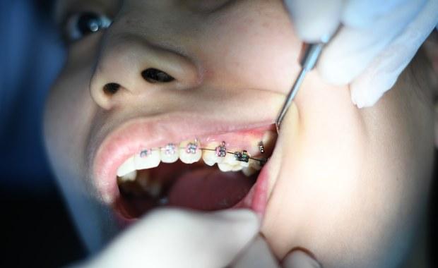 """Według Światowej Organizacji Zdrowia wady zgryzu są trzecim, po próchnicy i chorobach przyzębia, najbardziej rozpowszechnionym problemem zdrowotnym jamy ustnej. """"Badania pokazują, że z ich powodu cierpi ponad 90% Polaków, a co drugi z nich powinien być leczony ortodontycznie. Nie wszystkie wady zgryzu mogą jednak zostać wyleczone przez ortodontę. Coraz więcej przypadków trafia do chirurgów twarzowo-szczękowych"""" - mówi chirurg szczękowo-twarzowy dr n. med. Rafał Nowak."""