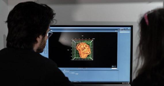 Naukowcy z Uniwersytetu Hebrajskiego w Jerozolimie prezentują obiecujące wyniki badań klinicznych wskazujących na to, że popularny i znany od dawna lek, fenofibrat (Tricor) może pomóc osobom najciężej przechodzącym zakażenie koronawirusem. Ogłoszone podczas konferencji naukowej SPARK wyniki badań wskazują na to, że lek obniżający poziom cholesterolu i trójglicerydów we krwi ogranicza uszkodzenia płuc u chorych na Covid-19.