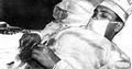 Leonid Rogozow: Radziecki lekarz, który sam się zoperował