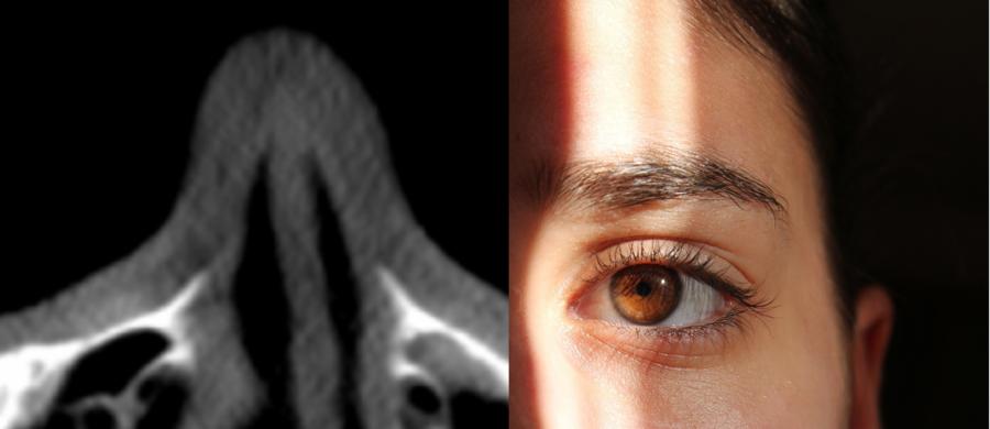 Krzywa przegroda nosowa to dość częsty problem, z którym pacjenci zgłaszają się do laryngologa. Ale nie zawsze o nim wiedzą, zazwyczaj okazuje się to dopiero na wizycie. Pacjent skarży się na problemy z zatokami, na bóle głowy i nieustanne infekcje górnych dróg oddechowych. W skrajnych wypadkach może również dojść do deformacji nosa, czyli perforacji przegrody nosowej.