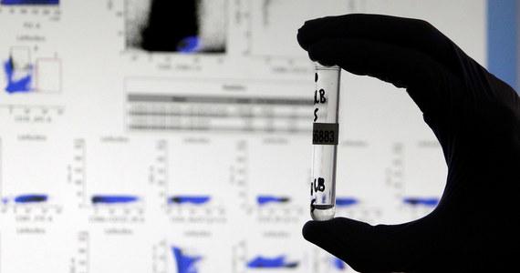 Światowa Organizacja Zdrowia (WHO) ogłosiła, że wprowadza nowe nazwy wariantów koronawirusa pochodzące od liter greckiego alfabetu. I tak wariant koronawirusa wykryty w Wielkiej Brytanii to Alfa, szczep kojarzony z RPA - Beta, wariant pochodzący z Brazylii - Gamma, a z Indii - Delta.
