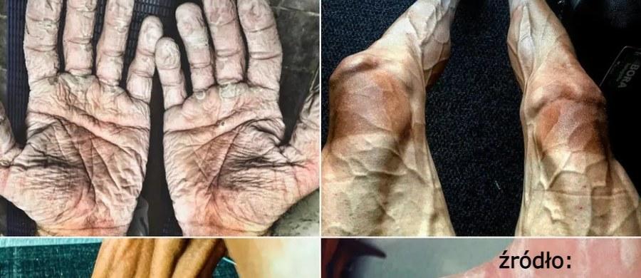 Wysiłek jaki sportowcy wkładają w przygotowanie do zawodów olimpijskich jest olbrzymi. Widać to gołym okiem na ich ciele w postaci poranionych dłoni, bolesnych pęcherzy czy wybrzuszonych żył na nogach.