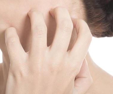 10 domowych sposobów na zapalenie skóry