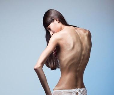 10 faktów o anoreksji