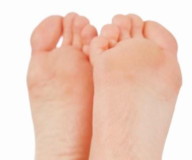 10 naturalnych sposobów na pękające pięty