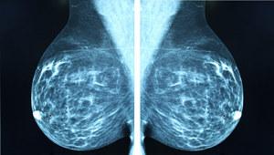 11 dni wystarczy, by pokonać raka piersi
