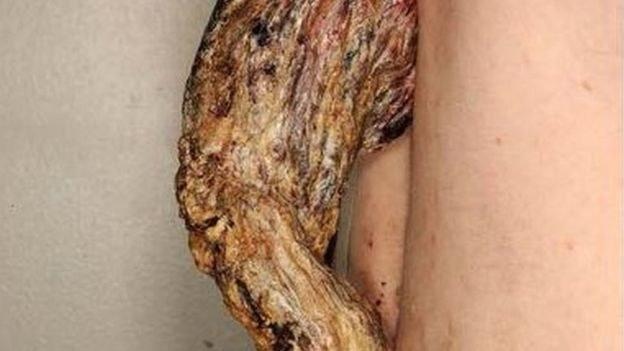 14-centymetrowy nowotwór rósł przez 3 lata /materiały prasowe