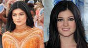16-letnia Kylie Jenner poddała się operacji plastycznej?